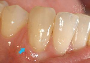 https://implant-periodontist-nyc.com/wp-content/uploads/2019/12/kissel-new-york-city-gum-tissue-graft-patient-4-after-300x210.jpg