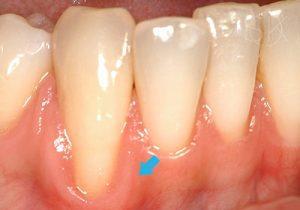 https://implant-periodontist-nyc.com/wp-content/uploads/2019/12/kissel-new-york-city-gum-tissue-graft-patient-4-before-300x210.jpg